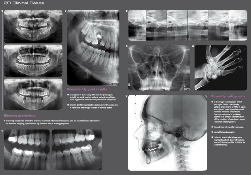 Tomografia-3D-Gordent-4